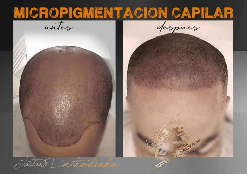 micropigmentacion caplar paramedica en valencia en progreso en proceso efecto rapado (2)
