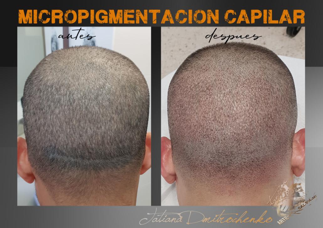 micropigmentacion caplar paramedica en valencia en progreso en proceso efecto rapado cicatriz