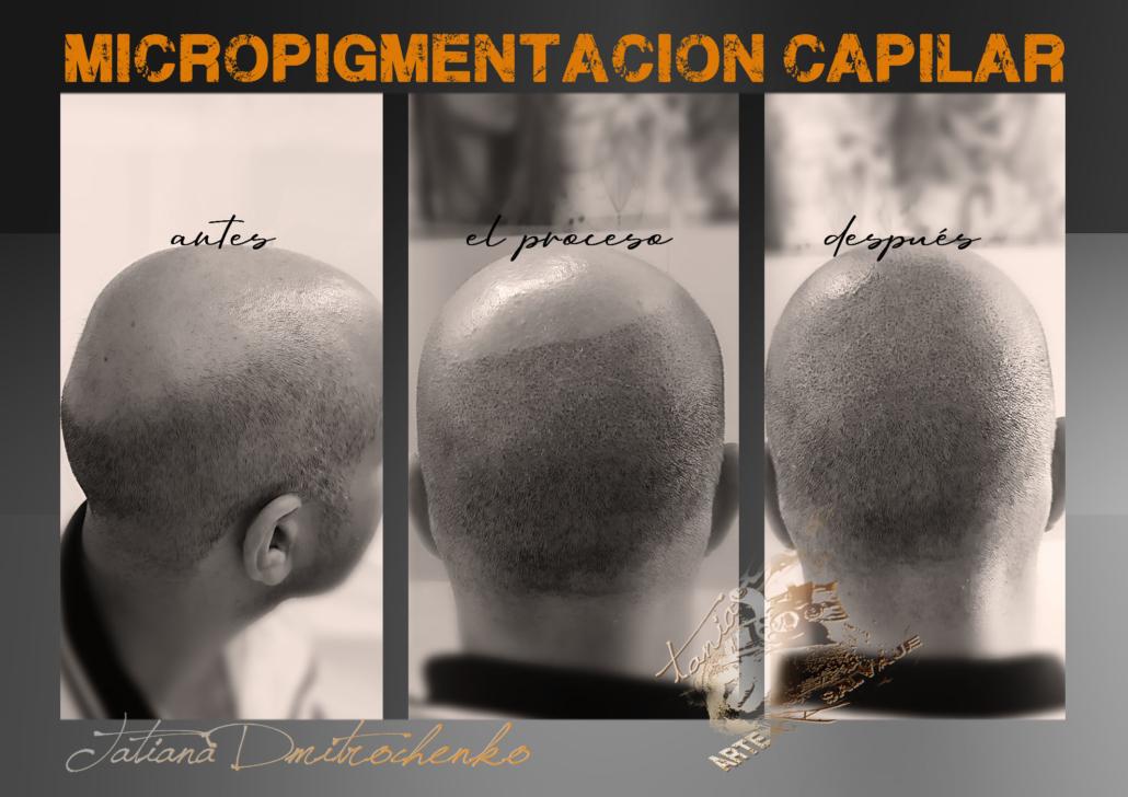 micropigmentacion caplar paramedica en valencia en progreso en proceso efecto rapado (3)