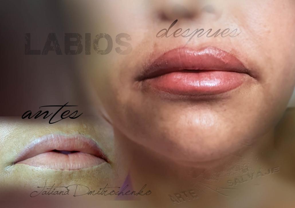 micropigmentacion de labios tatuados reconstruccion perfilados relleno contorno valencia