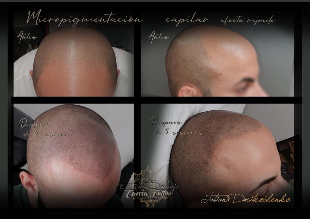 micropigmentacion caplar paramedica efecto rapado valencia (5)