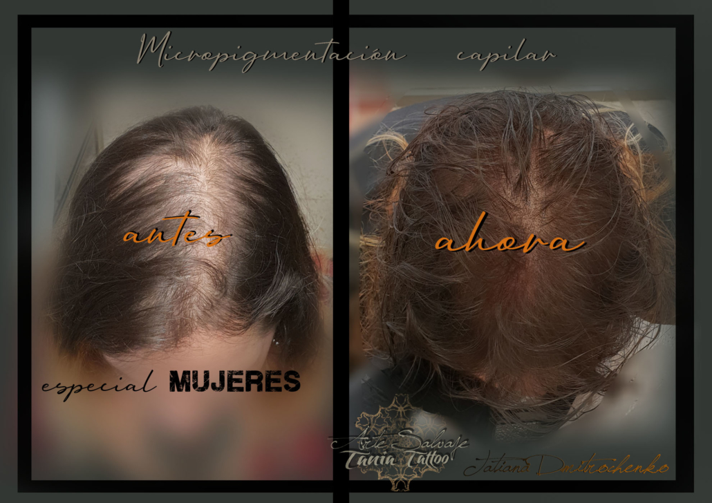 micropigmentacion caplar paramedica en valencia para mujeres efecto densidad (1)