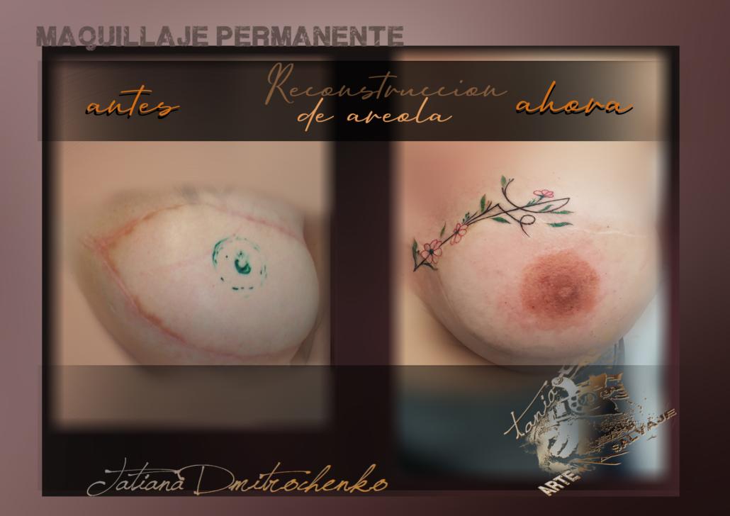 reconstruccion de areola postquirurgica en valencia micropigmentacion (3)