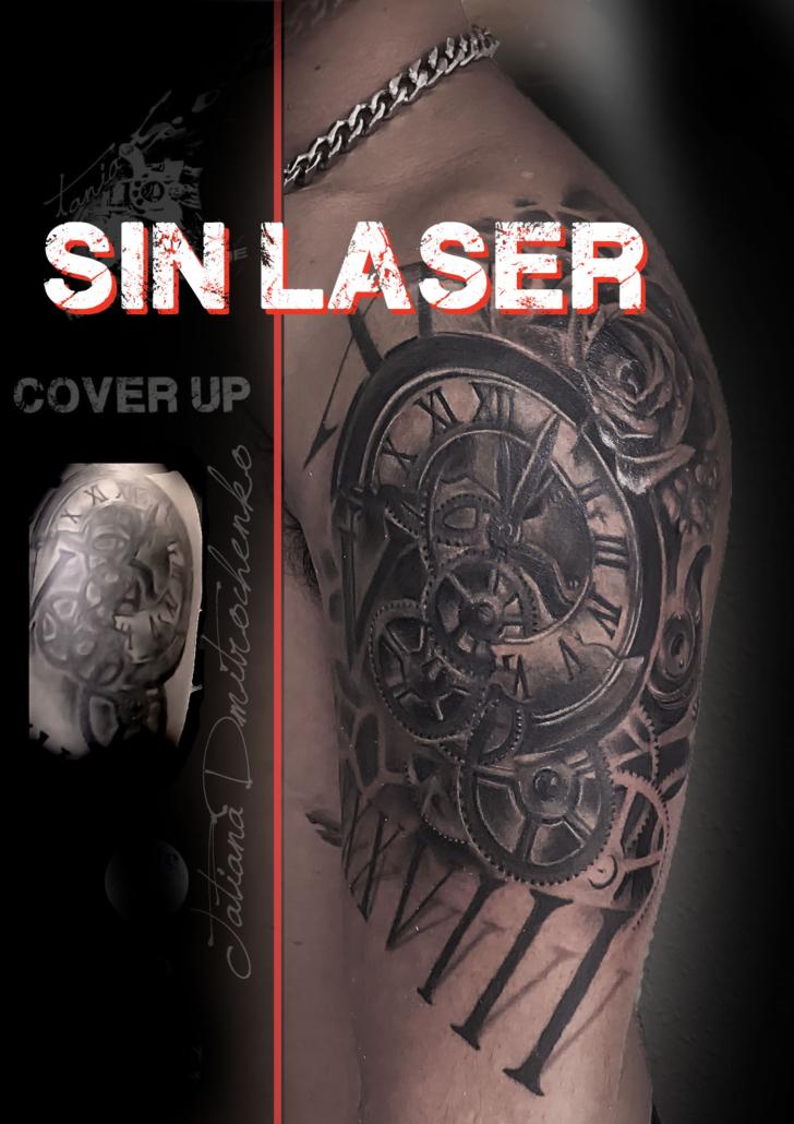 cover de tatuaje up sin laser valencia