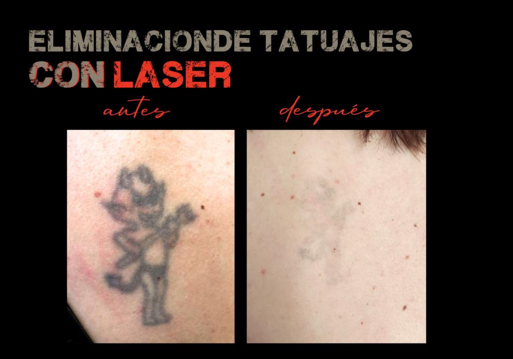 eliminacion de tatuajes con laser valencia
