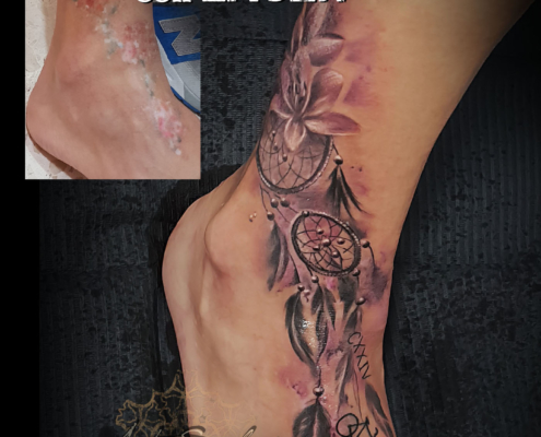 tatuaje cover up eliminacion con laser valencia 3