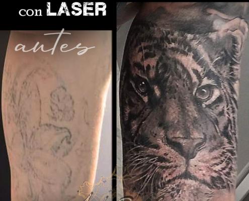 tatuaje cover up eliminacion con laser valencia 8
