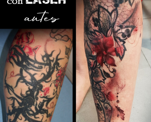 tatuaje femenino cover up eliminacion con laser valencia 5
