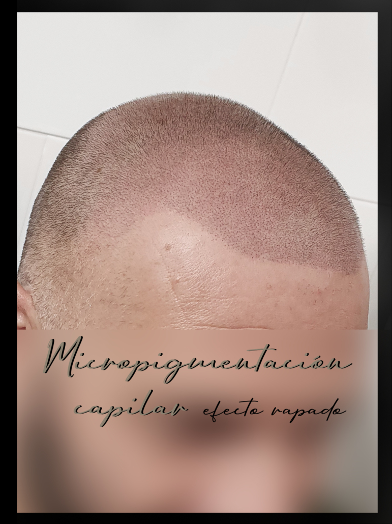 micropigmentacion capilar efecto rapado en valencia luca
