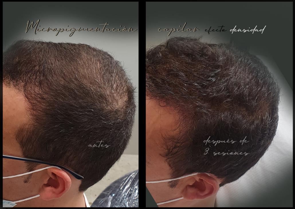 capilar tratamiento de micropigmentacion en valencia efecto densidad tatuar pelo