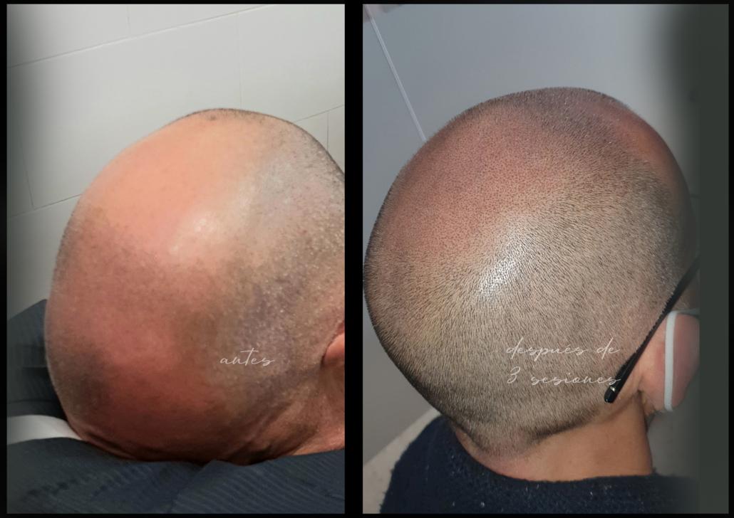capilar tratamiento de micropigmentacion en valencia efecto rapado tatuar pelo 2