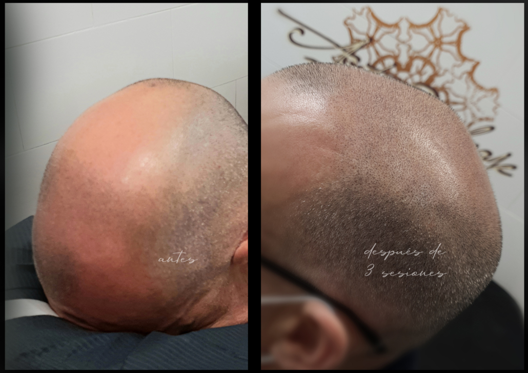 capilar tratamiento de micropigmentacion en valencia efecto rapado tatuar pelo